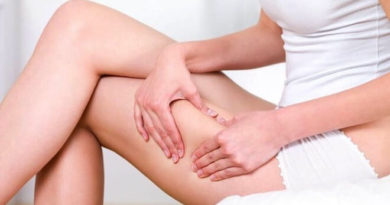 5 myths about cellulite